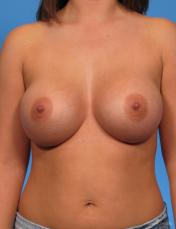 Breast Augmentation: Patient 1 - After Image