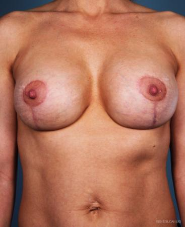 Breast Implant Revised: Patient 3 - After Image 1