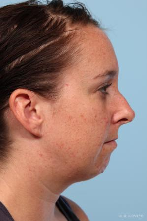 Rhinoplasty: Patient 4 - Before and After Image 2