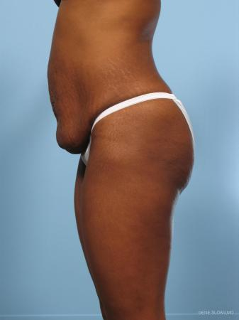 Abdominoplasty: Patient 2 - Before and After Image 2