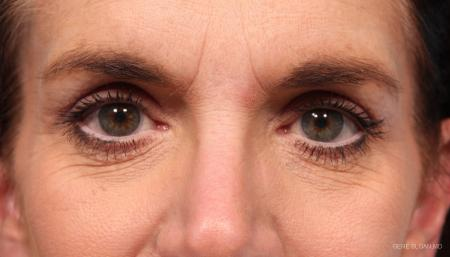 Blepharoplasty: Patient 2 - After Image