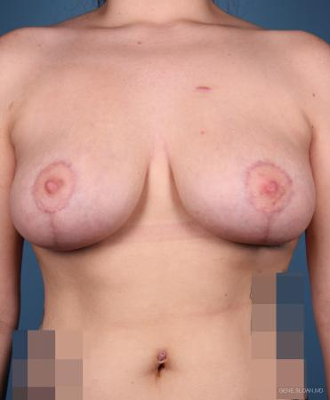 Breast Lift: Patient 1 - After Image