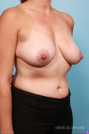 Breast Lift: Patient 6 - Before and After Image 3