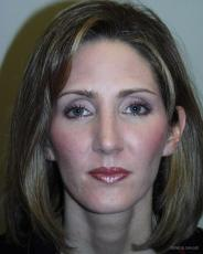 Rhinoplasty: Patient 1 - After Image
