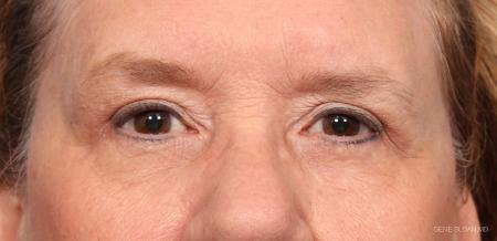 Blepharoplasty: Patient 3 - After Image