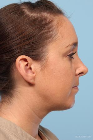 Rhinoplasty: Patient 4 - After Image 2