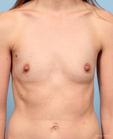 Breast Augmentation: Patient 19 - Before Image 1
