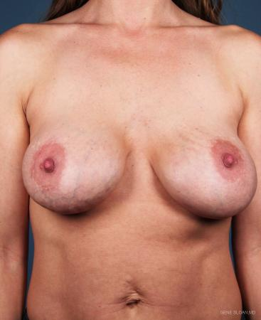 Breast Implant Revised: Patient 3 - Before Image 1