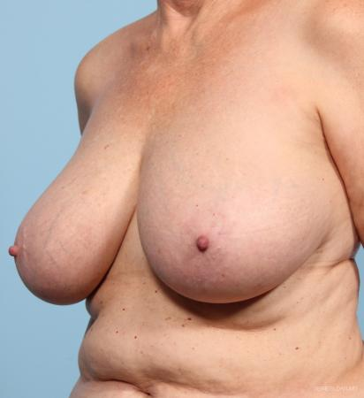 Breast Reduction: Patient 3 - Before and After Image 2