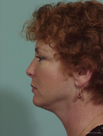 Neck Lift: Patient 1 - After Image 2