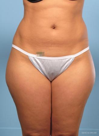Liposuction: Patient 1 - Before Image