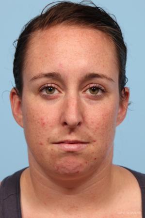 Rhinoplasty: Patient 4 - Before Image