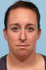 Rhinoplasty: Patient 4 - Before Image