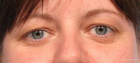 Blepharoplasty: Patient 5 - Before Image