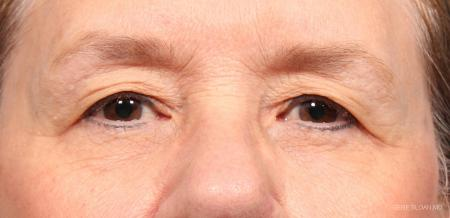 Blepharoplasty: Patient 3 - Before Image