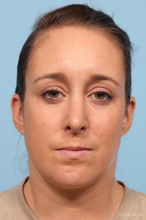 Rhinoplasty: Patient 4 - After Image 1