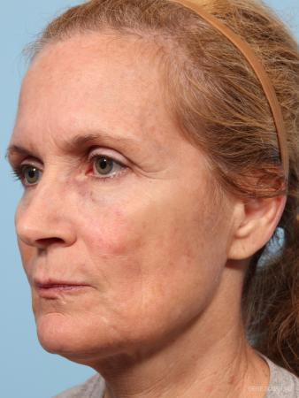 Facelift: Patient 7 - Before Image 2