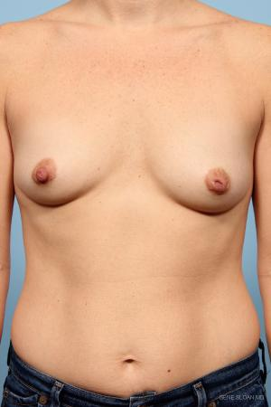 Breast Augmentation: Patient 7 - Before Image