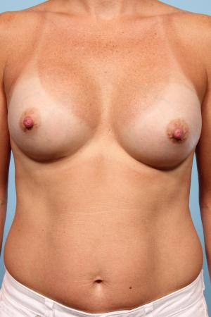 Breast Augmentation: Patient 7 - After Image