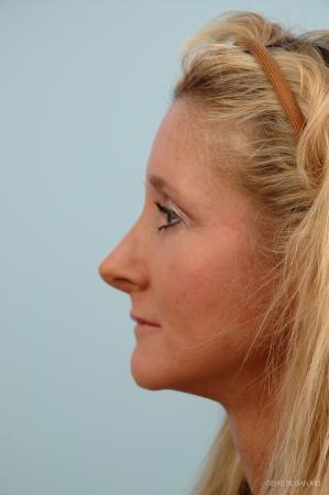Rhinoplasty: Patient 2 - After Image 2