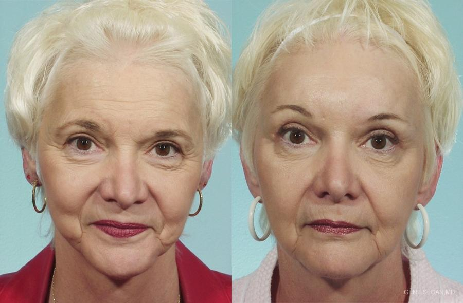 Brow Lift: Patient 2 - Before and After Image