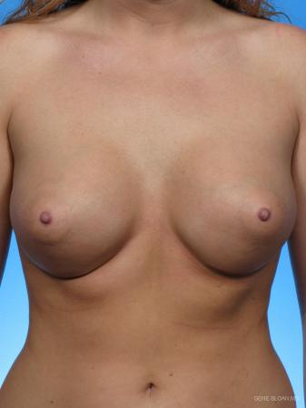 Breast Augmentation: Patient 5 - After Image