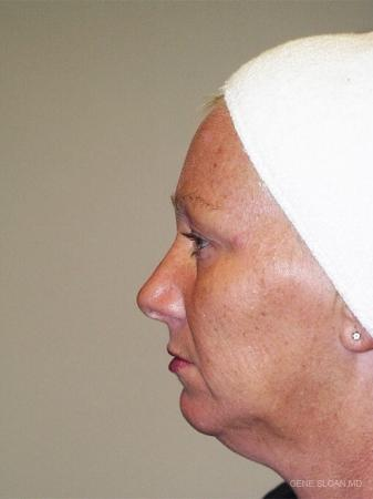 Facelift: Patient 4 - Before and After Image 2