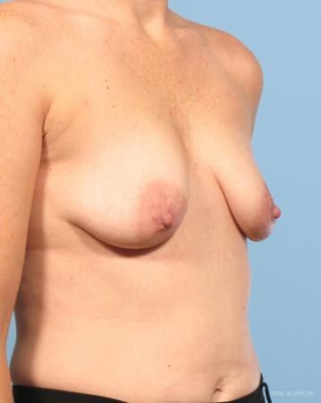 Breast Augmentation With Lift: Patient 6 - Before and After Image 2