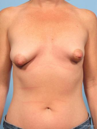 Breast Augmentation With Lift: Patient 4 - Before Image