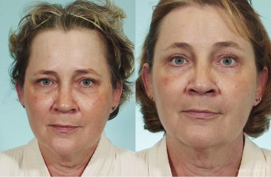 Brow Lift: Patient 1 - Before and After Image