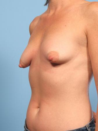 Breast Augmentation With Lift: Patient 4 - Before and After Image 2