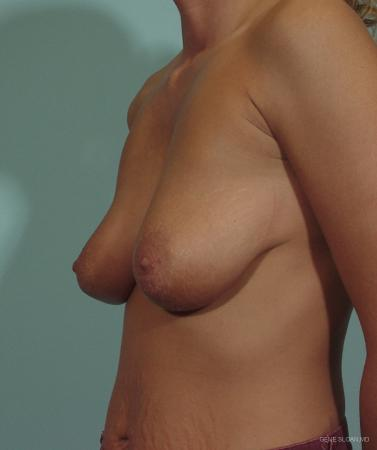 Breast Lift: Patient 5 - Before and After Image 2