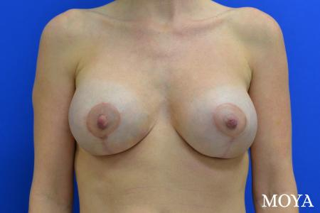 Breast Augmentation With Lift: Patient 7 - After Image