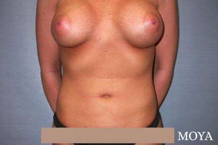 Liposuction (Abdomen):  Patient 1 - After Image