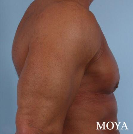 Male Breast Reduction: Patient 5 - After Image 1