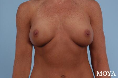 Breast Implant Exchange: Patient 3 - Before Image