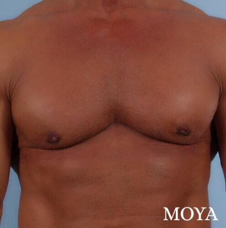 Male Breast Reduction: Patient 5 - After Image 2