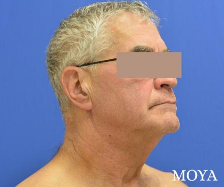 Facelift (Lower) - Before Image