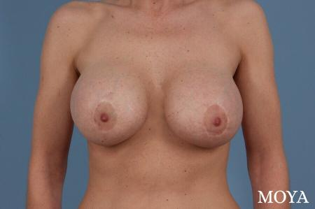 Breast Implant Exchange: Patient 2 - After Image