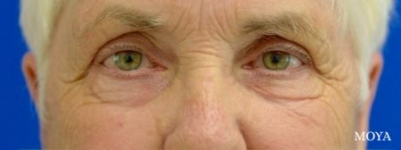 Eyelid Lift: Patient 10 - Before Image