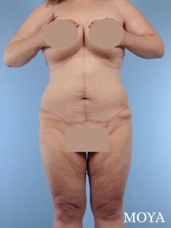 Corset Body Lift® (standard): BMI 34 - After Image