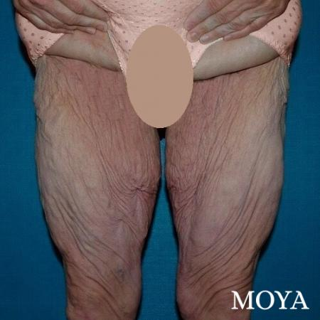 Thigh Lift: Patient 3 - Before Image