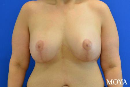 Breast Augmentation With Lift: Patient 10 - After Image