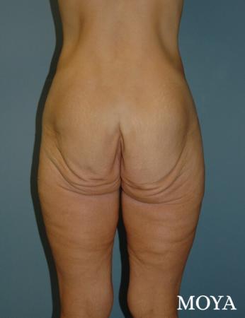 Butt Lift: Patient 1 - Before Image