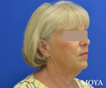 Neck Lift: Patient 5 - Before Image