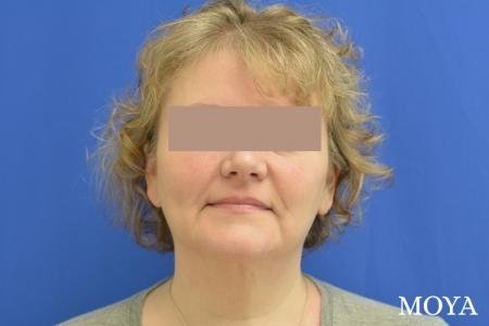 Facial Liposuction: Patient 1 - After Image