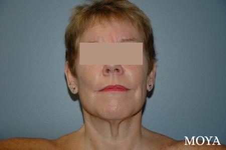 Neck Lift: Patient 2 - Before Image
