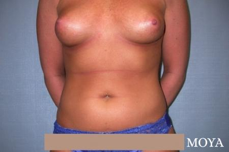 Liposuction (Abdomen):  Patient 1 - Before Image