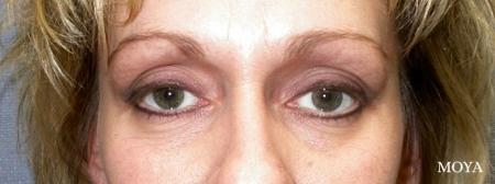 Eyelid Lift: Patient 7 - Before Image
