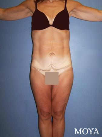 Lower Body Lift: Patient 1 - Before Image